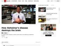 https://www.cnn.com/videos/health/2015/06/24/sanjay-gupta-alzheimers-disease-brain-orig.cnn